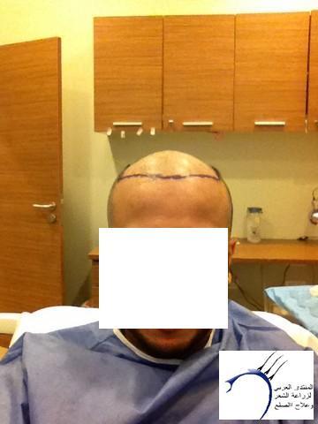 أقدم تجربـتي لزراعة الشعر مركـز www.hairarab.comf7d5