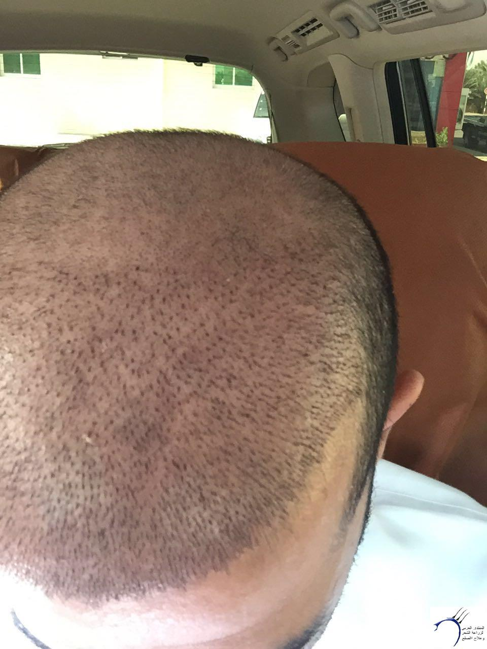 www.hairarab.comf8b5