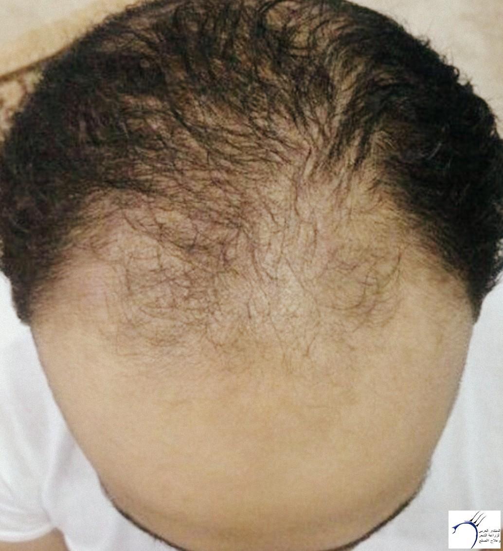 الدكتور www.hairarab.comf8c5