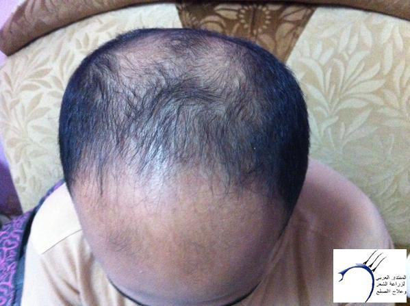 www.hairarab.comf8d8