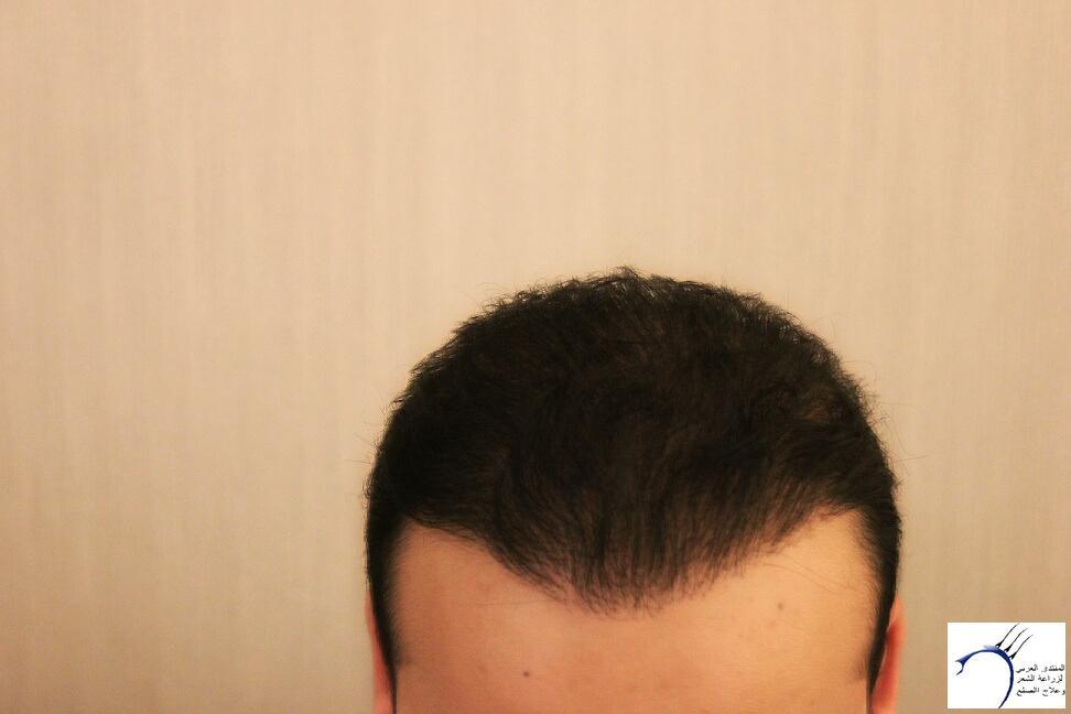 www.hairarab.comfa52