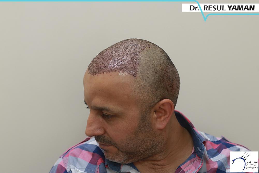 نتيجة السيد Emin Demir زراعة www.hairarab.comfa63