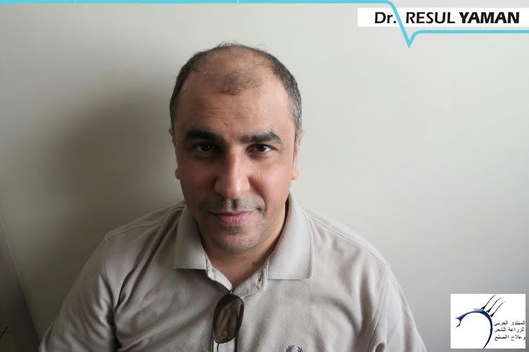 (:سيلفيي) الدكتور www.hairarab.comfab9