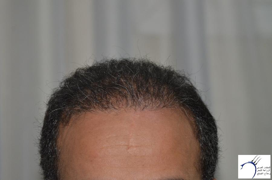 اليكم نتيجة زراعتي الاولى نتيجة www.hairarab.comfbe4