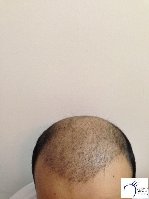 www.hairarab.comfe1b