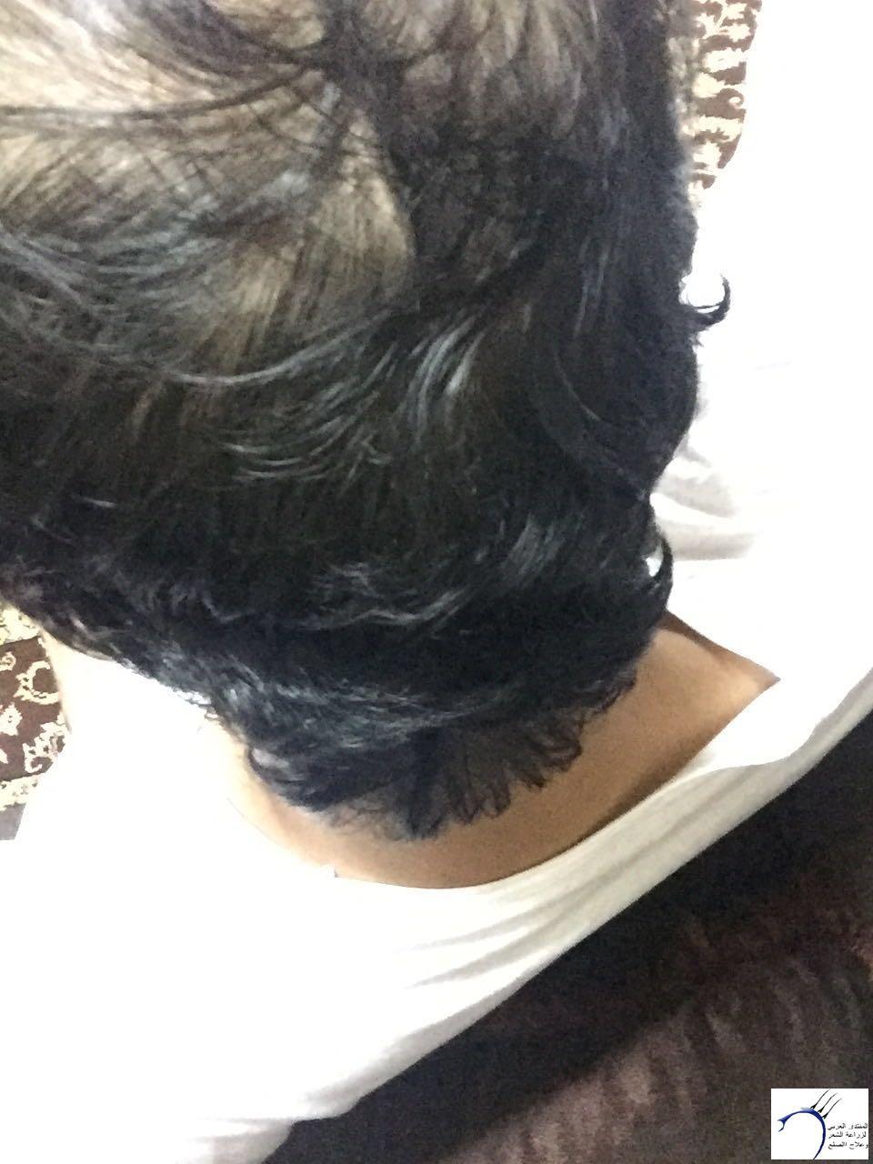 www.hairarab.comff42