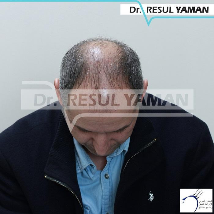 نتيجة زراعة 4450 بصيلة أشهر www.hairarab.comffd0