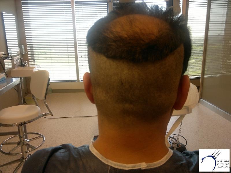 تجربتي لزراعة الشعر تركيا الدكتور www.hairarab.comffe8