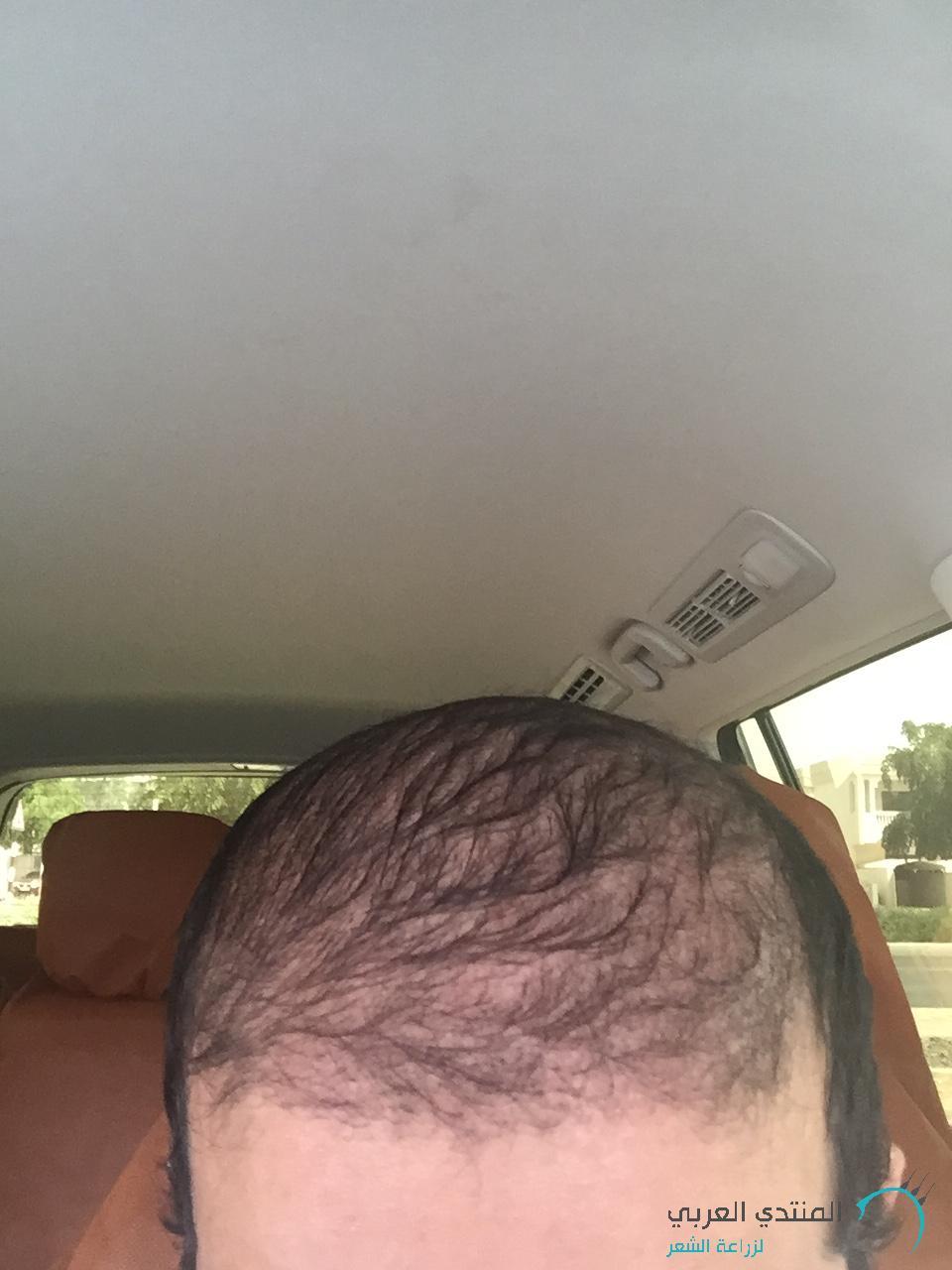 www.hairarab.com1459