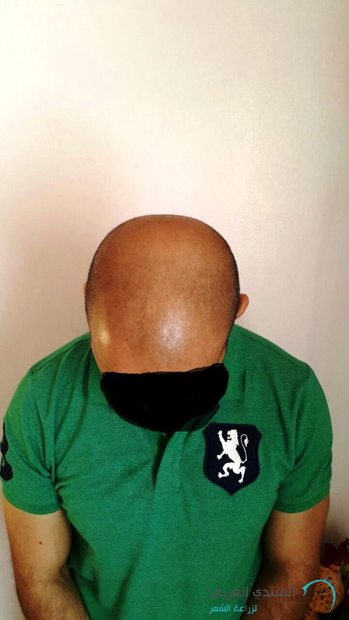 www.hairarab.com1463