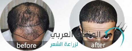 22500 www.hairarab.com1466