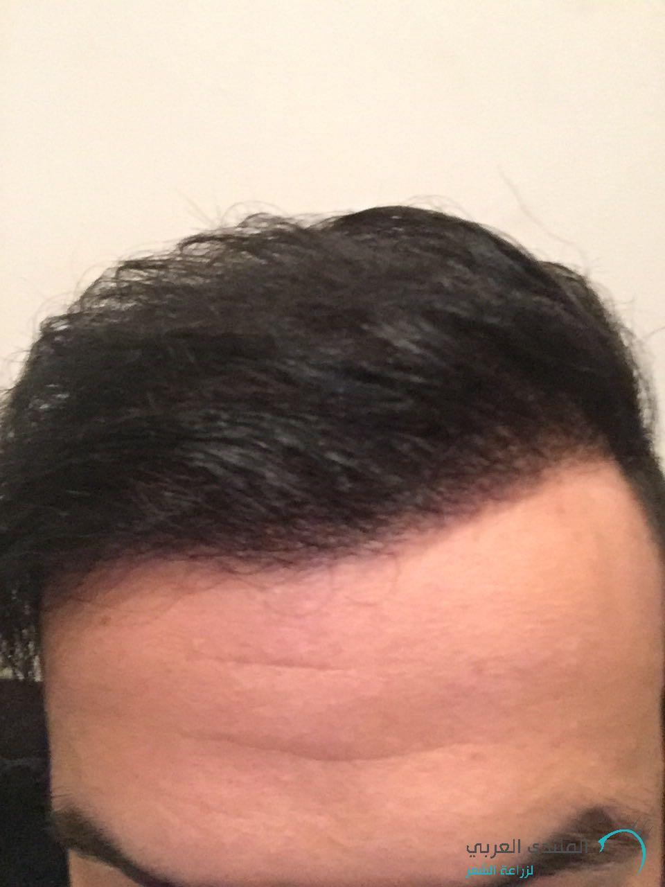 www.hairarab.com1486