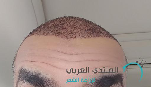 11/4/2017 www.hairarab.com1492