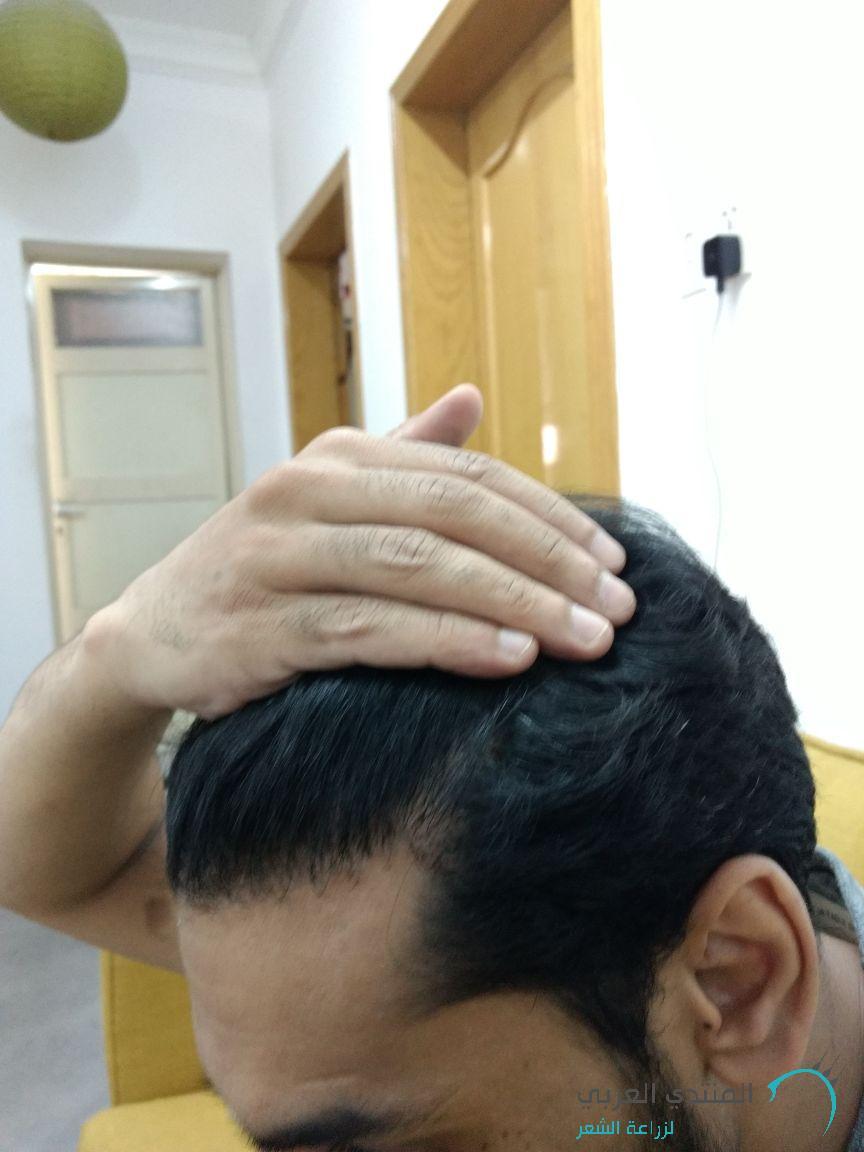 (تجربة (ارزو) www.hairarab.com1499