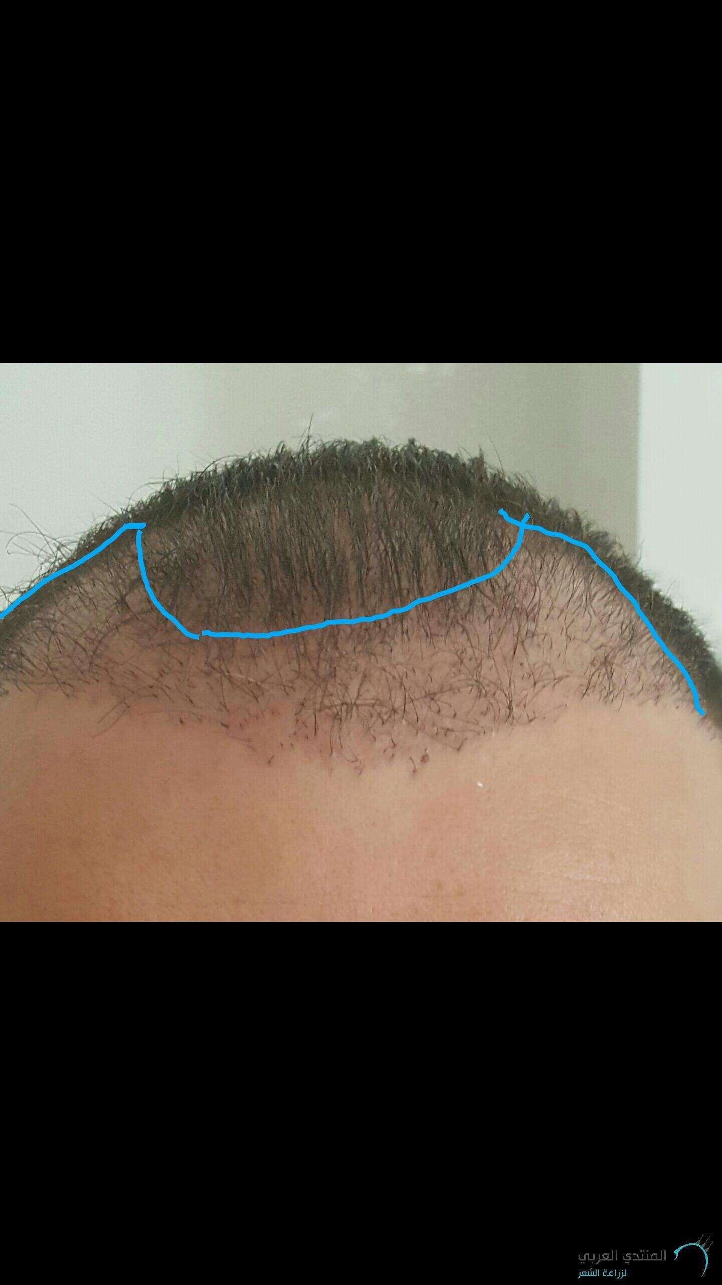 www.hairarab.com1502