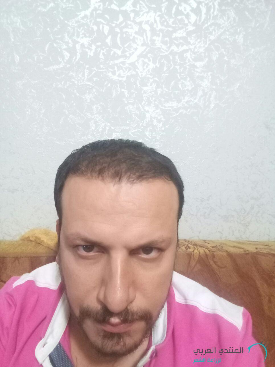 www.hairarab.com1504