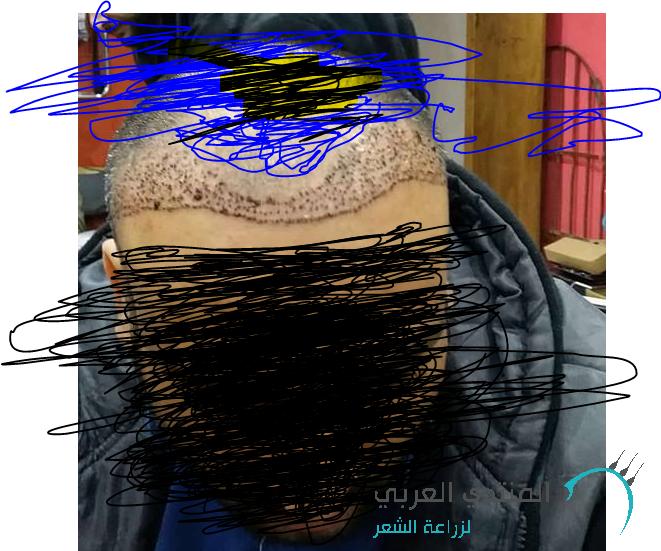 الدكتور www.hairarab.com1516