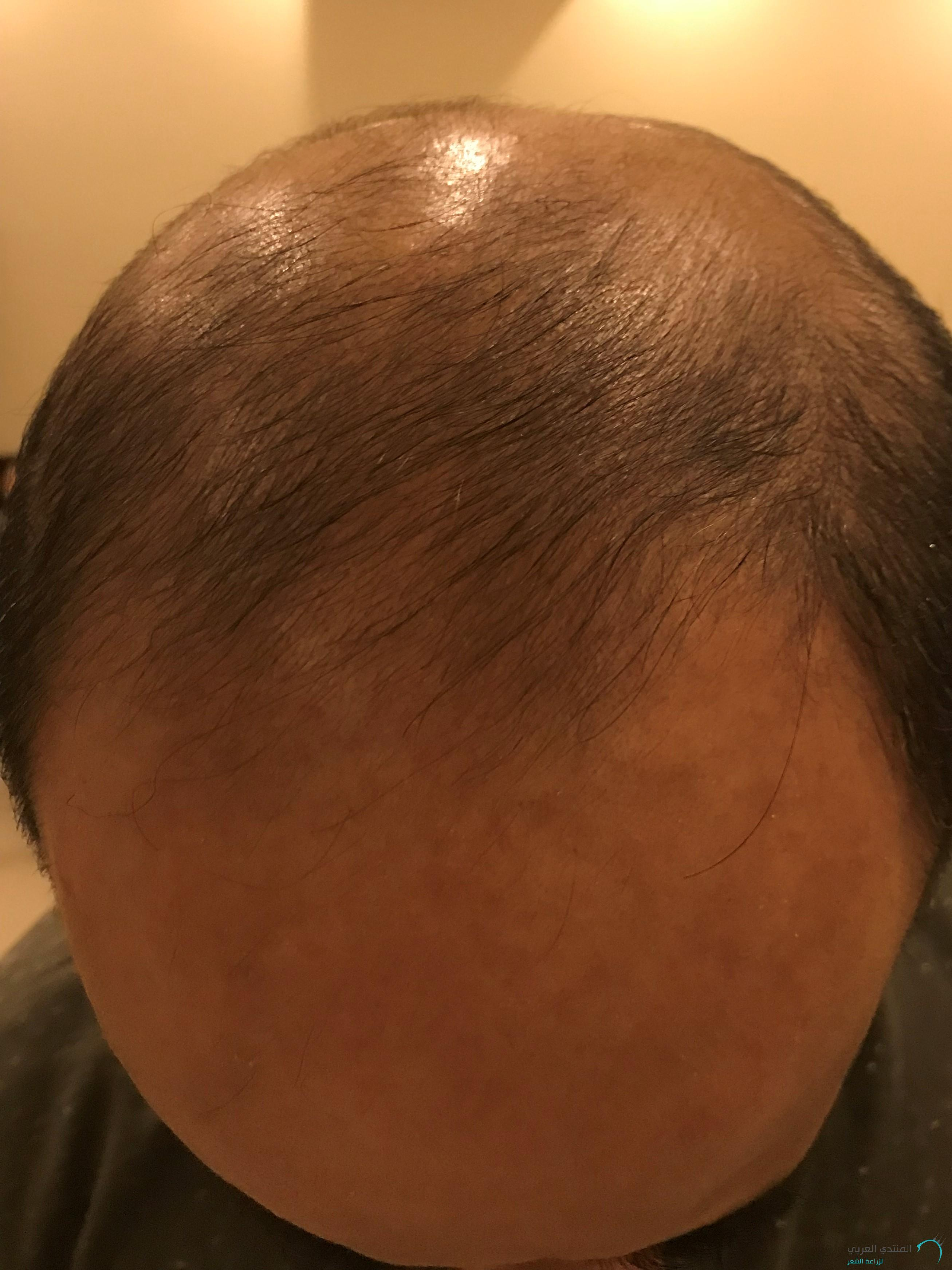 www.hairarab.com1517