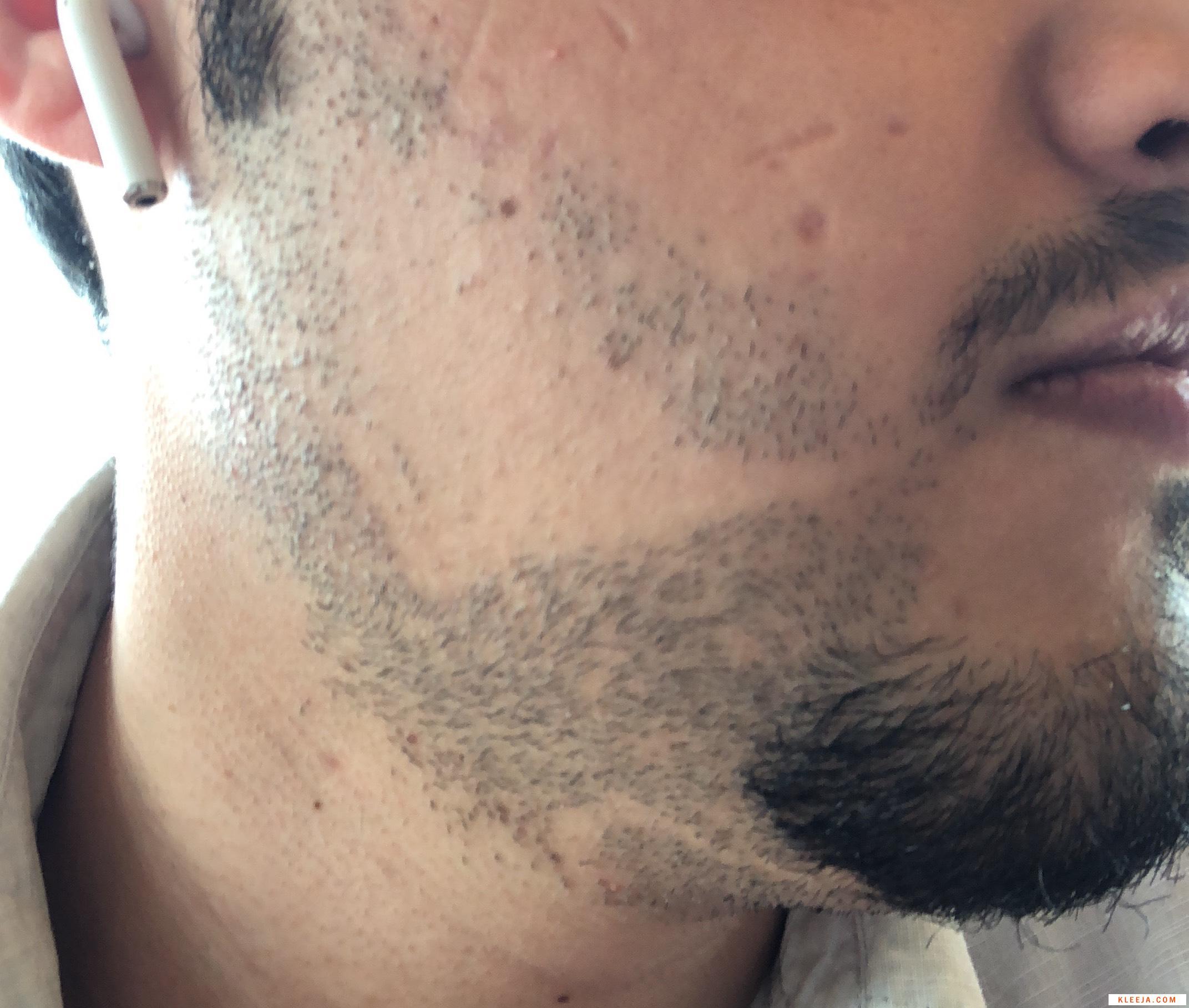 الدكتور www.hairarab.com1532