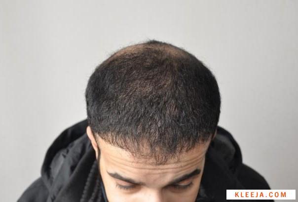 22500 www.hairarab.com1545